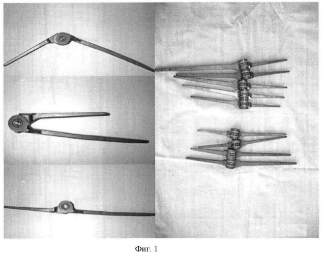 Способ лечения тяжелых внутрисуставных переломов локтевого сустава в сочетании с переломами диафиза локтевой кости