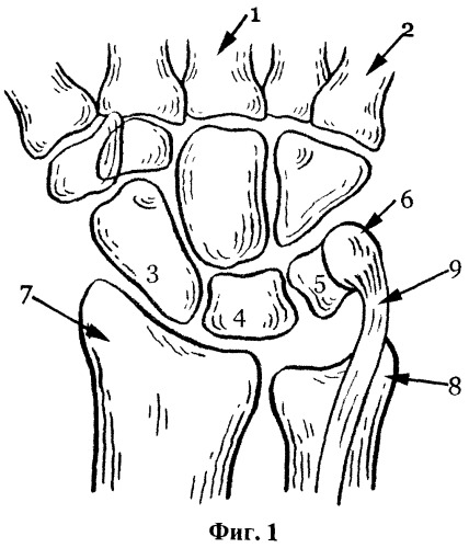 Способ артродеза лучезапястного сустава у детей с вялыми параличами верхней конечности