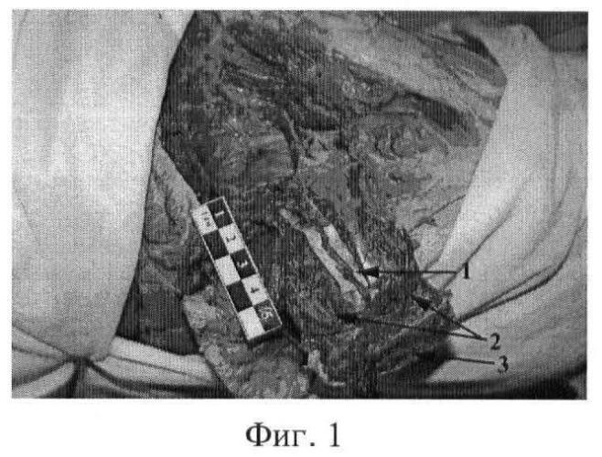 Способ остеосинтеза шейки бедренной кости с несвободной костной аутопластикой
