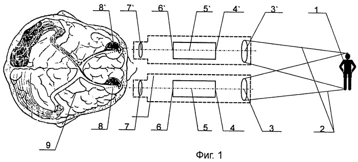 Способ наблюдения объектов и бинокулярное устройство