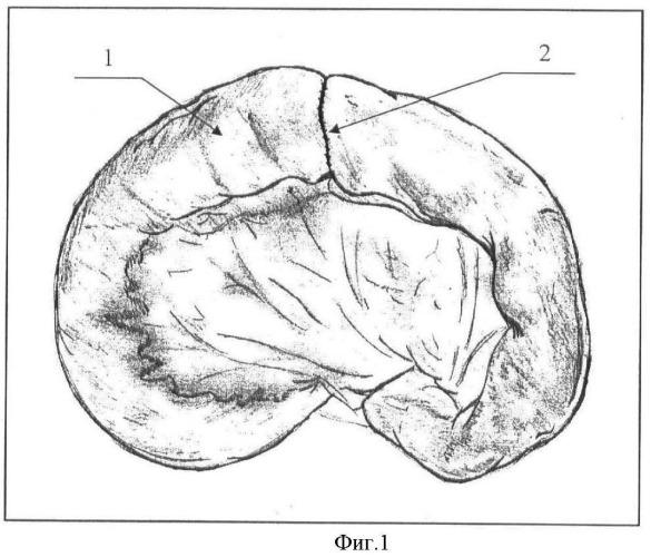 Способ герметизации межкишечного анастомоза