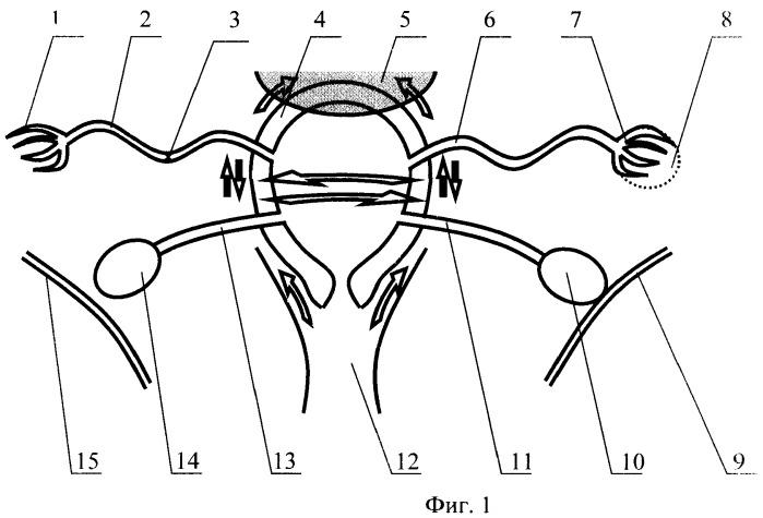 Способ мануального лечения трубного бесплодия и хронических заболеваний в гинекологии