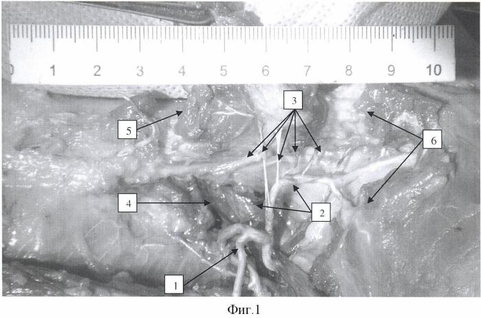 Способ несвободной пластики островковым костным аутотрансплантатом для лечения дефектов ключицы