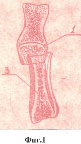 Способ артропластики межфаланговых суставов пальцев кисти