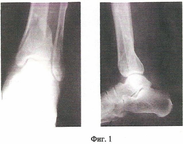 Способ консервативного лечения переломов костей голени