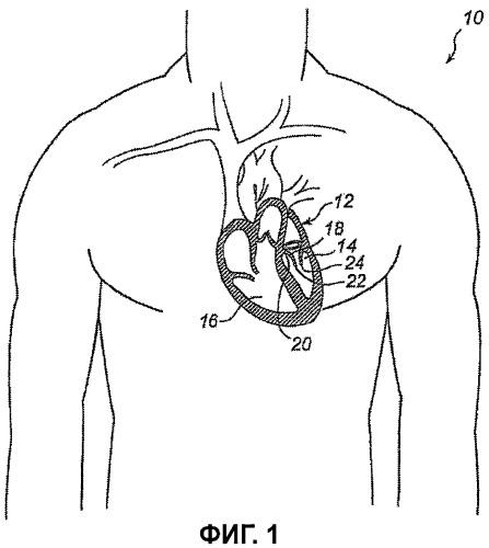 Устройство и способ для улучшения работы сердечного клапана