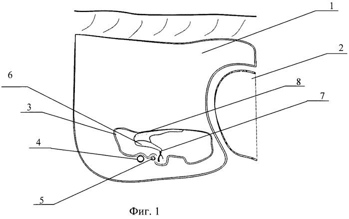 Способ профилактики вибротравмы внутреннего уха при удалении атрезии наружного слухового прохода