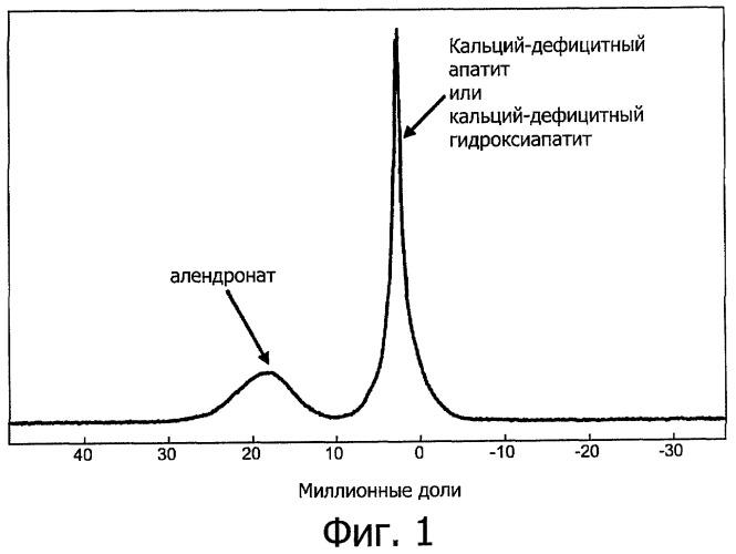 Инъецируемый кальций-фосфатный цемент в форме апатита, высвобождающий ингибитор резорбции костной ткани