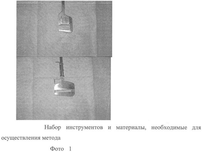 Способ аппаратного ушивания культи левого предсердия с использованием ауто- или аллотрансплантатов