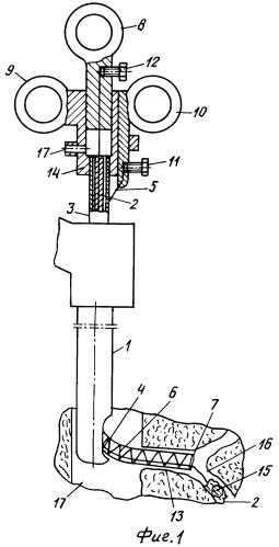 Устройство управляемое для эндоскопического удаления конкрементов из желчных протоков