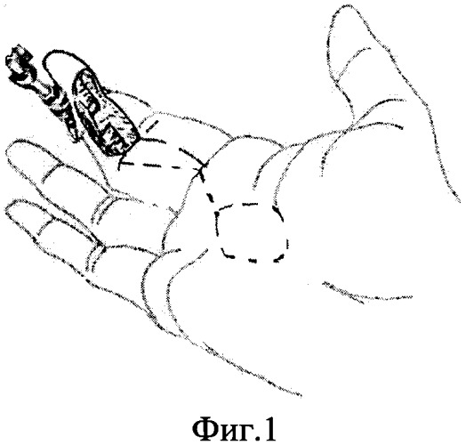 Способ возмещения дефекта мягких тканей ладонной поверхности пальца