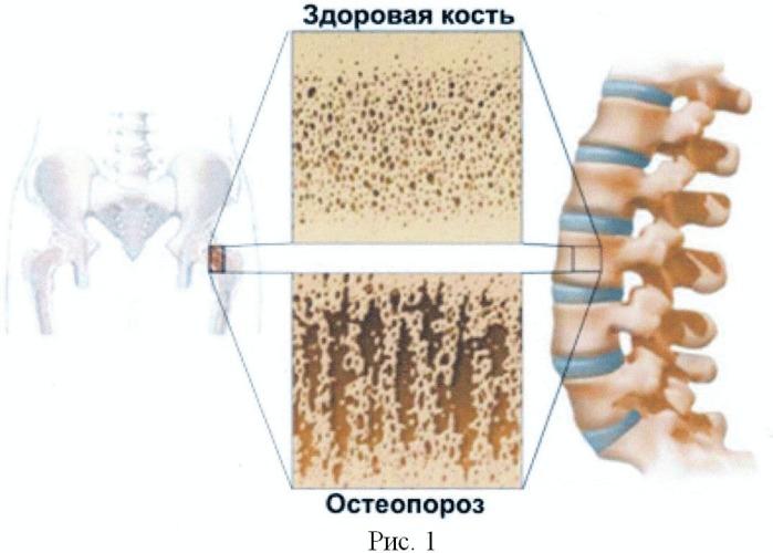 Способ заполнения полостных образований в метафизарных (трабекулярных) участках костей кальцием и предотвращения выведения из них кальция