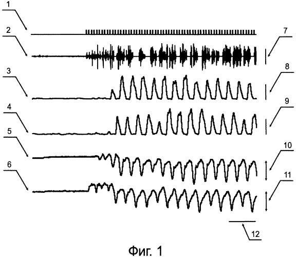Способ моделирования лечения больных с хроническим поражением спинного мозга на лабораторных животных