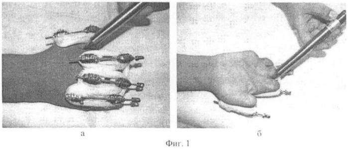 Способ диагностики коррекции темпа дистракции при удлинении с последствиями холодовой травмы культей пальцев кисти