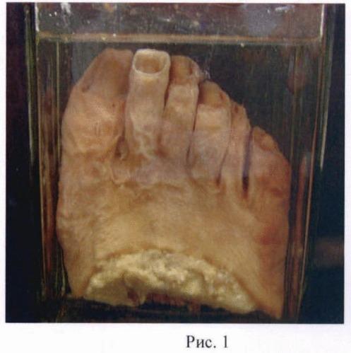 Способ восстановления и сохранения естественной окраски кожных покровов и мягких тканей макропрепаратов