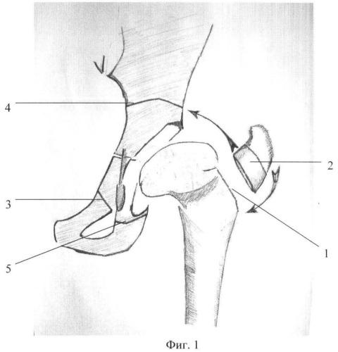 Способ выполнения ротационной транспозиции вертлужной впадины