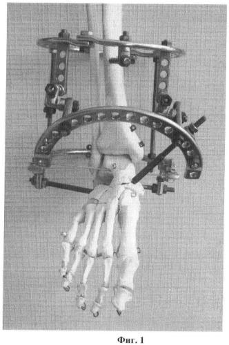 Способ трехсуставного артродеза стопы