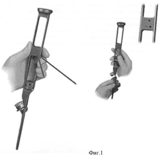 Способ интраоперационной навигации при эндопротезировании плечевого сустава однополюсным эндопротезом эси