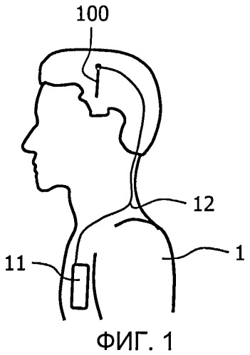 Система электродов для глубокой стимуляции головного мозга