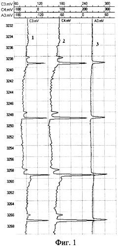 Способ электромагнитной дефектоскопии-толщинометрии многоколонных скважин и устройство для его осуществления