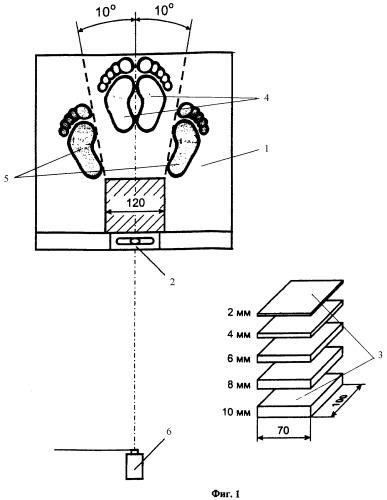 Способ и устройство для определения величины асимметрий длины нижних конечностей и перекоса таза