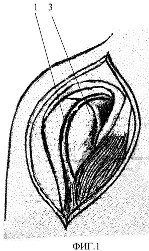 Способ хирургического лечения привычного вывиха плеча