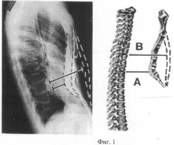 Способ лечения воронкообразной деформации грудной клетки