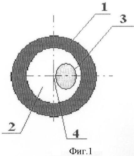 Способ определения показаний к хирургической коррекции фиброза передней капсулы хрусталика при артифакии в сочетании с патологией периферической зоны глазного дна