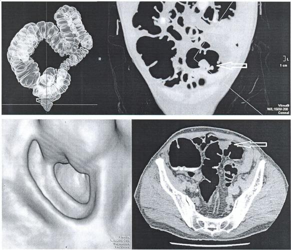 Метод контрастирования остаточного содержимого толстой кишки при виртуальной колоноскопии