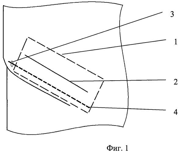 Способ профилактики раневых осложнений после протезирующей герниопластики паховых грыж