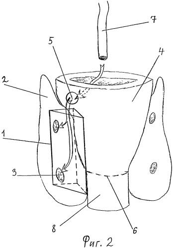 Способ операции на органах шеи и устройство для создания операционного пространства при его осуществлении