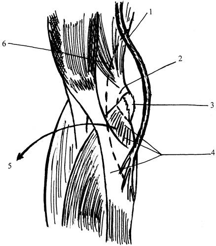 Способ лечения невропатии локтевого нерва