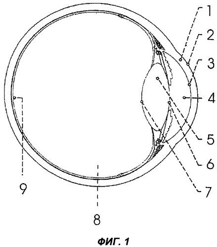 Лазерная система для рефракционной хирургии, оказывающая щадящее воздействие на глаза