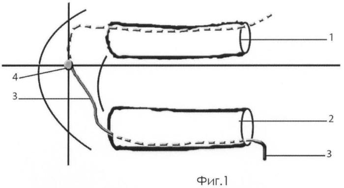 Способ одномоментной реконструкции дефектов верхней и нижней челюстей