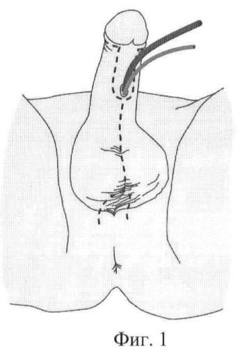 Способ реконструкции наружных женских половых органов при вирилизации наружных половых органов у девочек