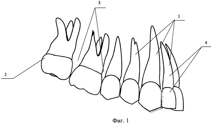 Способ установки ортодонтического микроимплантата и шаблон для его осуществления