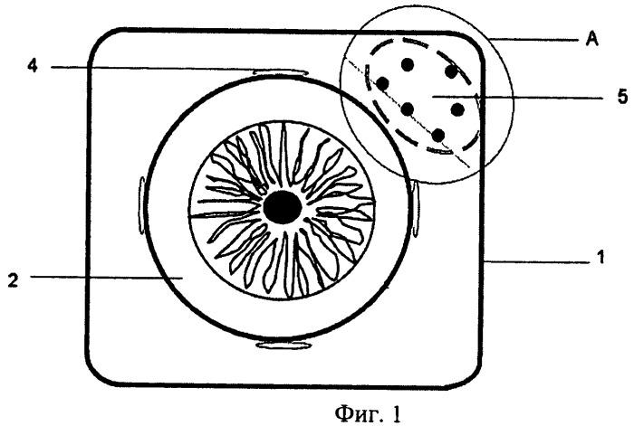Способ моделирования постоперационной брахитерапии опухолей орбиты