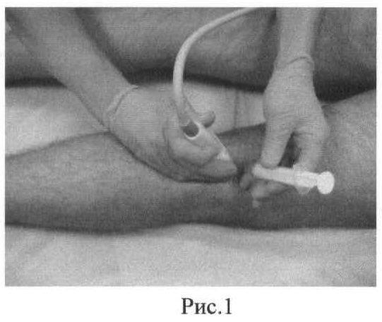 Способ лечения кисты бейкера коленного сустава без операции
