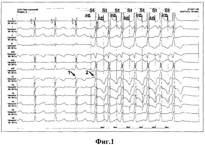 Способ диагностики левосторонней локализации дополнительных атриовентрикулярных соединений у детей с синдромом вольфа-паркинсона-уайта