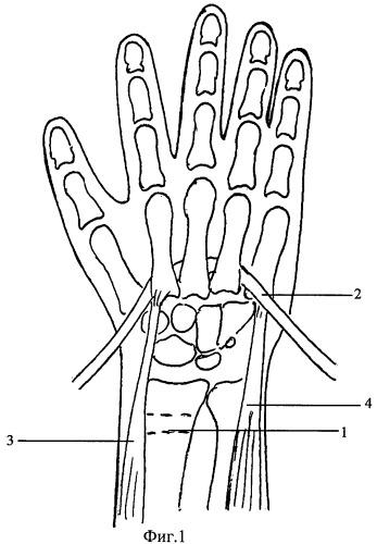 Способ устранения порочного положения кисти и пальцев при необратимых поражениях мышц предплечья