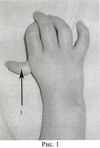 Способ реконструкции первого пальца кисти у детей с врожденной гипоплазией первого пальца кисти