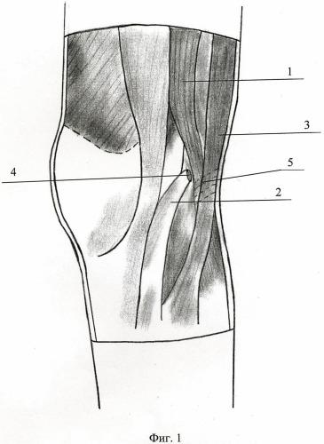 Способ хирургического лечения застарелого разрыва связки надколенника