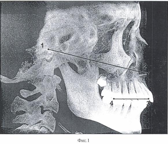 Способ нахождения анатомической плоскости, являющейся параллельной плоскости окклюзии