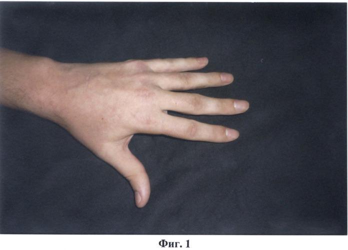 Способ реабилитации разгибательных контрактур пальцев кисти