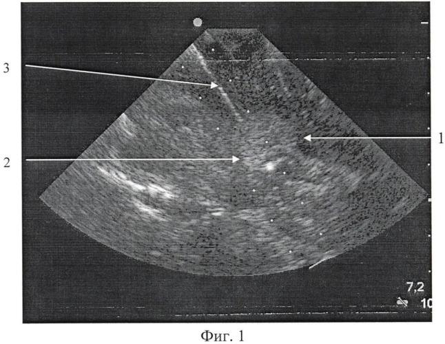 Способ интраоперационной ультразвуковой навигации при внутримозговых новообразованиях