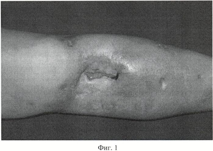 Способ фиксации мышечного лоскута при пластике дефектов покровных тканей и краевого дефекта большеберцовой кости без значительного нарушения ее механической прочности при последствиях травм и сочетанных повреждениях голени