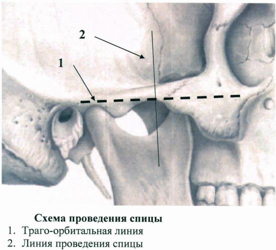Способ лечения травм шейного отдела позвоночника
