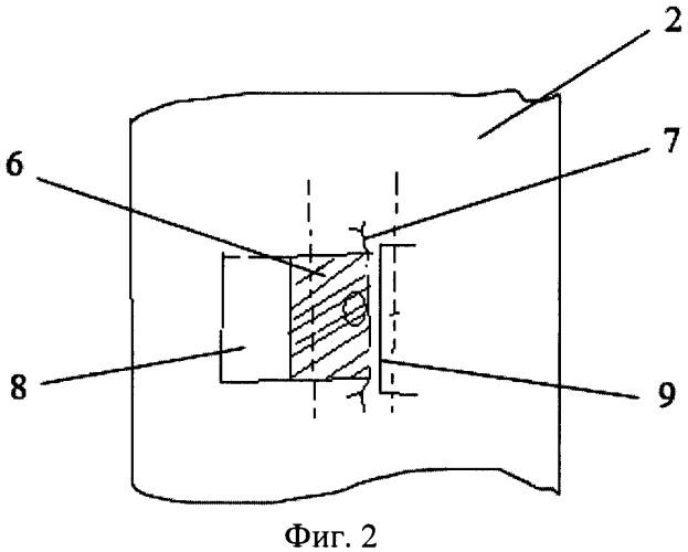 Способ хирургического лечения трахеостомы при стенозах трахеи