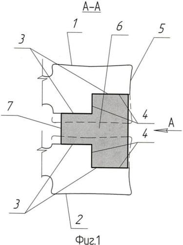 Способ переднего спондилодеза при неспецифических спондилодисцитах позвоночника (варианты)