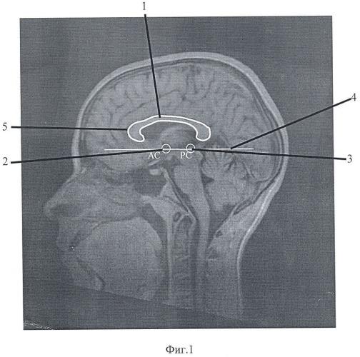 Способ диагностики детского церебрального паралича (дцп)